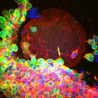 Human Egg Cells Grow Up in Lab