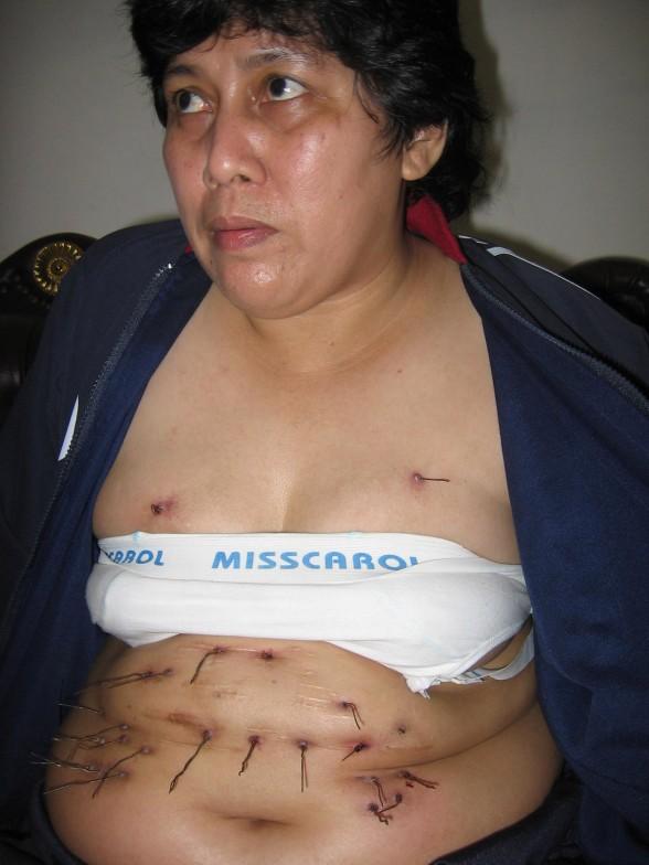 20 noorsyaida metal wires 588x784 25 Perempuan yang Paling Extreem di Dunia