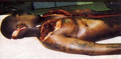 That is Tupac's autopsy. Which makes you believe that he is dead.