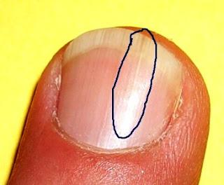 Everything Nails: Why do I keep on developing split fingernails?