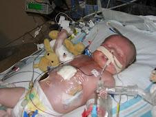 First Heart Surgery