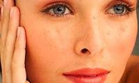 Eliminer les tâches de la peau