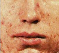 Méthodes naturelles pour lutter contre l'acné