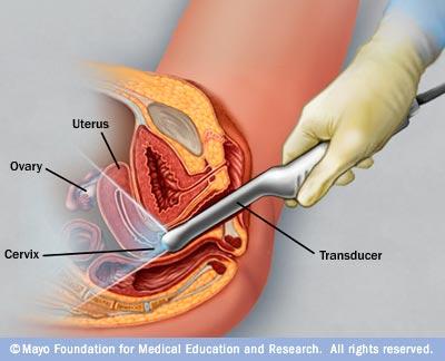 titthålsoperation cysta äggstock