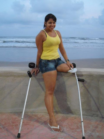 this blog is dedicated to all of disability devotee, e.g amputee