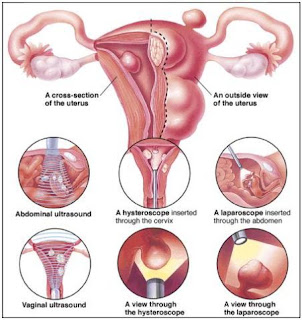 ... Online health Care,Health Care Tips: How to Shrink Fibroids Naturally