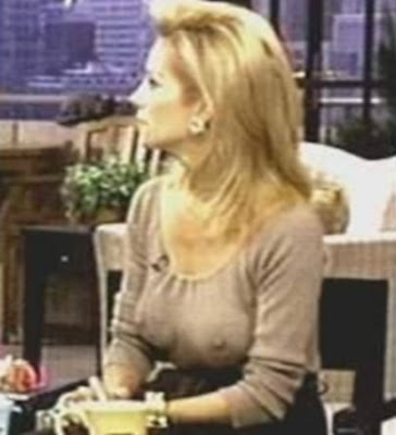Kathie Lee Gifford Plastic Surgery - Before & After