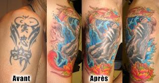 tatouage enlever au laser - Comment se faire enlever un tatouage ? Santé Magazine