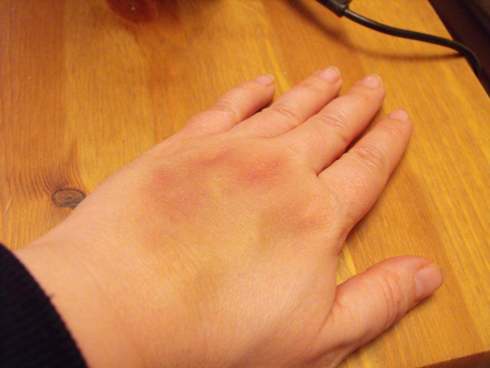 propp i fingret symptom