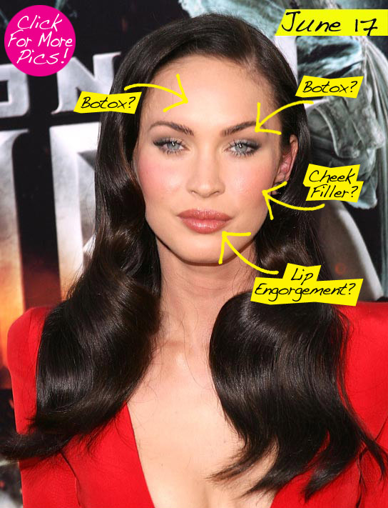 megan fox lip job. lip injections! Megan you