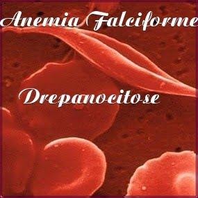 Anemia Falciforme - Drepanocitose