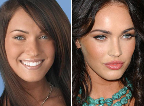 megan fox before and after plastic. Looking at Megan Fox#39;s before