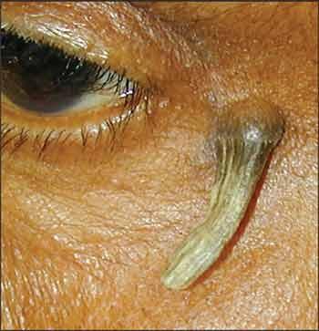 Keren B. Horn - Chicago Dermatologist - Skin Care Products