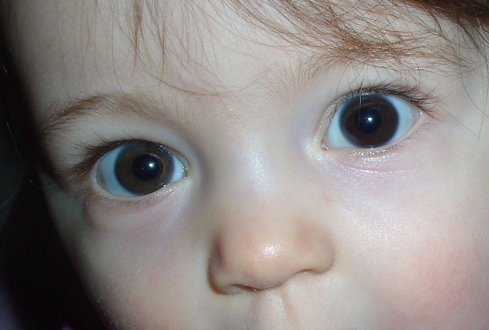 gene yeux bleus récessif