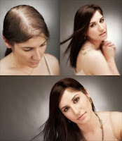 Thinning Hair : Solutions for Thinning Hair in Women