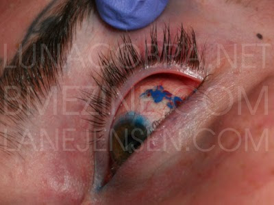 eye tattoo pictures, eye tattoos he eyeball tattooing procedures were done