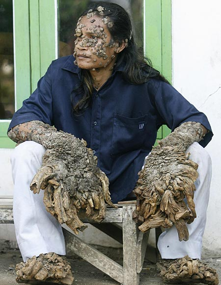 tree man feet. tree man feet.