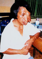 Vietnamese woman with horrendous dioxin deformities