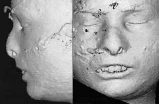 CT Scan Death Mask, I.C. enhanced (2008)