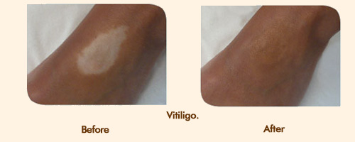 how to make scars blend in with skin