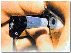 PROGRAMA DEL MANEJO INTEGRAL DEL GLAUCOMA.