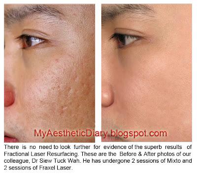 Acne Scar Laser Treatment Pore