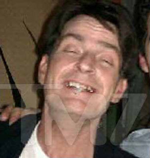 charlie sheen teeth