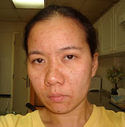 . rid of my pimples. Steroid based ointment once applied on the face may .