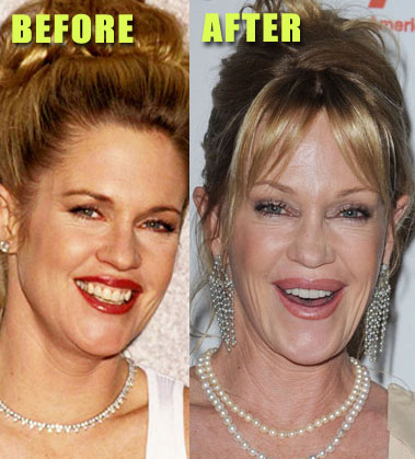 Melanie Griffith - before & after? (image hosted by grerp.blogspot.com)