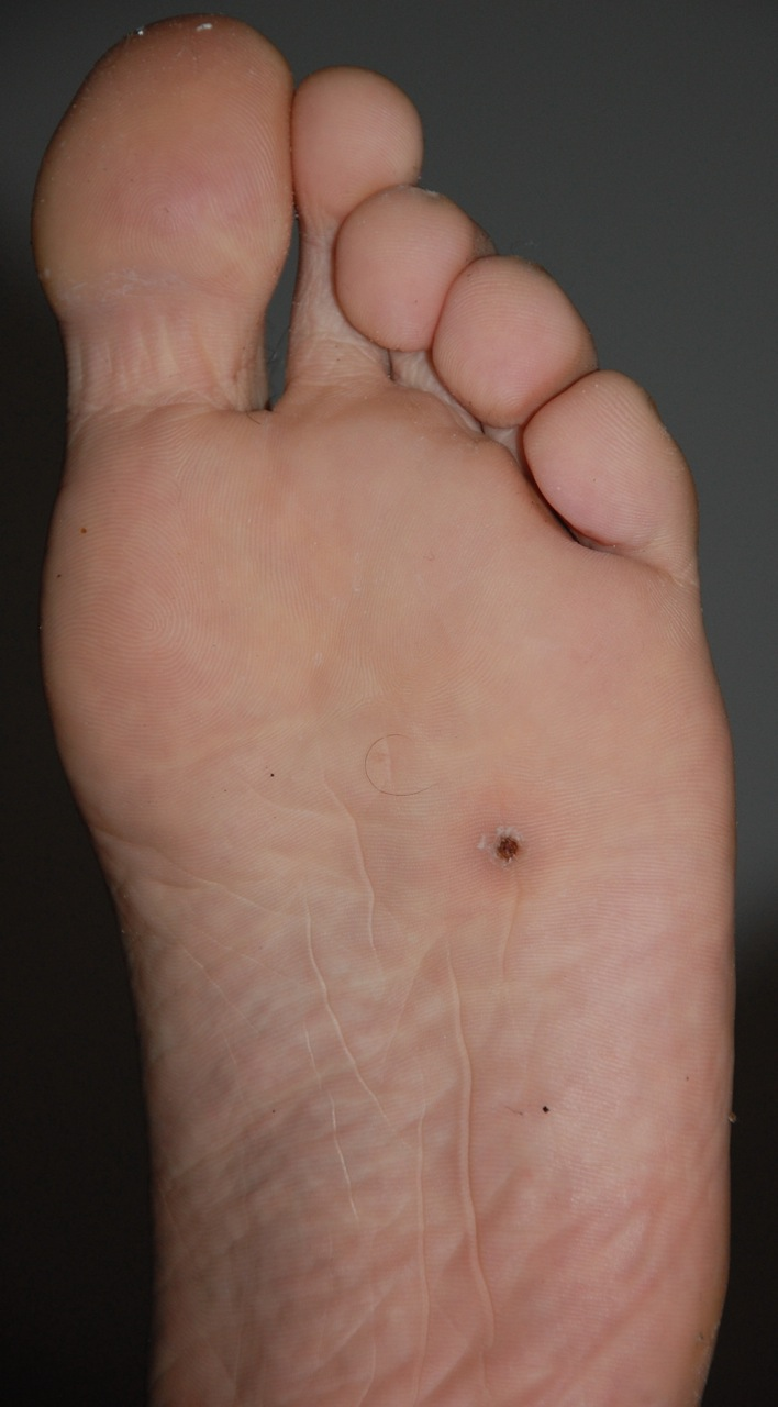 Splinters on bottom of foot