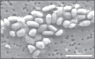 Vue microscopique de la bactérie GFAJ-1 dans l'arsenic