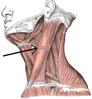 fisioterapia en tortículis