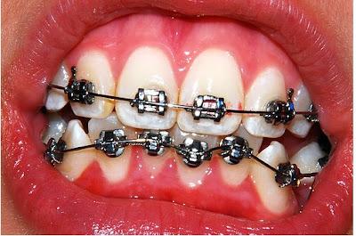 fotografia odontologia