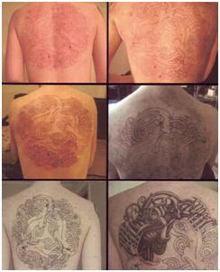 Cosmetic skin care center tattoo healing process for Process of tattooing