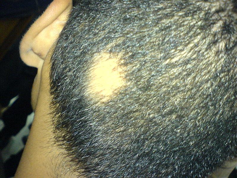 Por qué después de la máscara con el aceite de bardana los cabellos caen aún más