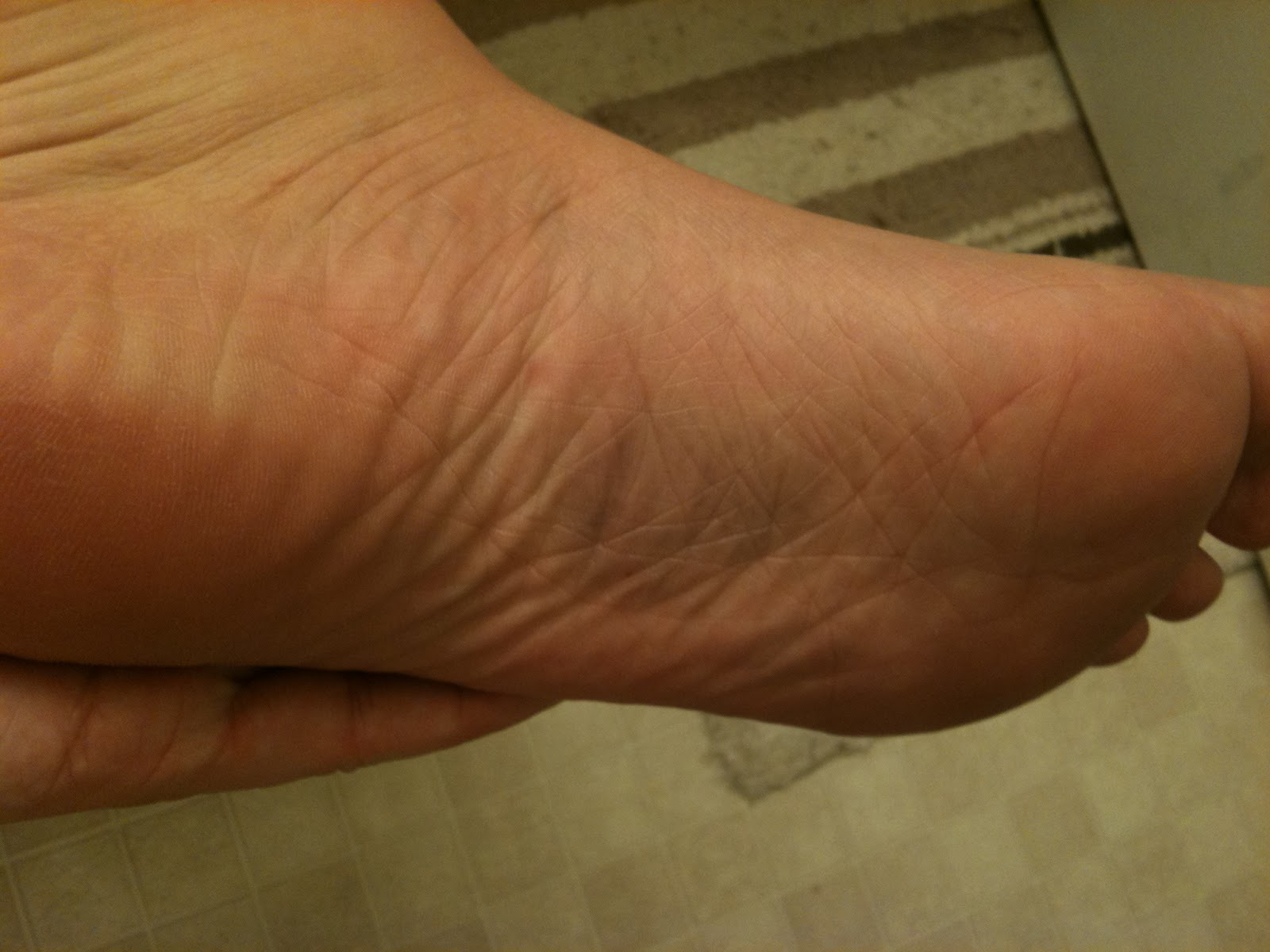 Bottom Of Foot Bruise