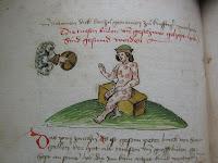 (Blatt 74v) Peter Birck von St. Gallen, der übersät ist mit Beulen, wird geheilt; rechts oben die Hand Gottes, Copyright: Christie's Images Limited 2010, Quelle: www.idw-online.de