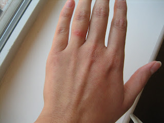 the beginning stages of my rash - Wedding Ring Rash