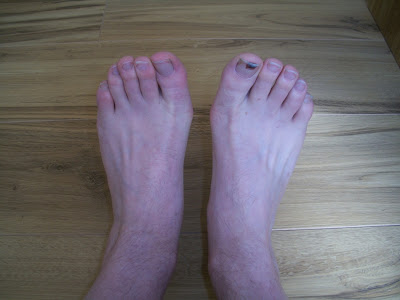 Swollen Feet And Ankles After Drinking Alcohol