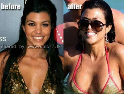 enlarged_celebs_breasts_640_09.jpg (640×484)