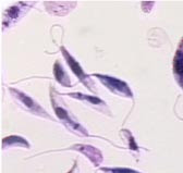 leishmania braziliensis: