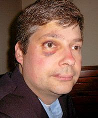 Manfred Rouhs' black eye