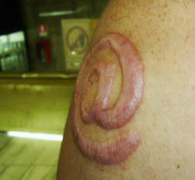 x men tattoos_19. Weird Skin Burning Tattoos
