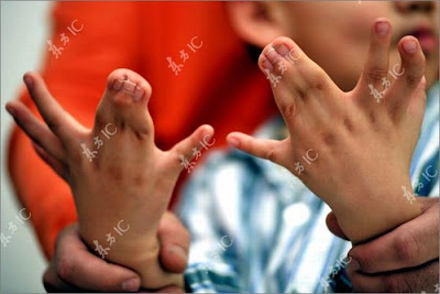 Boy with 31 Fingers and Toes Seen On www.coolpicturegallery.net