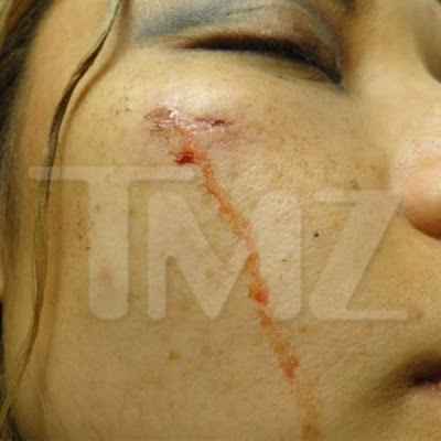 Tila Tequila Attacked at Rowdy Concert Seen On  www.coolpicturegallery.net