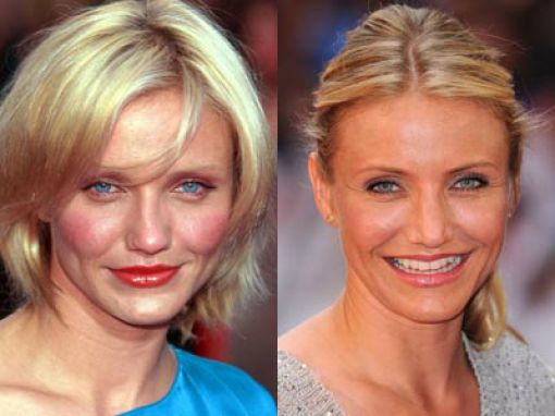 Cameron Diaz Before and After Nose Job