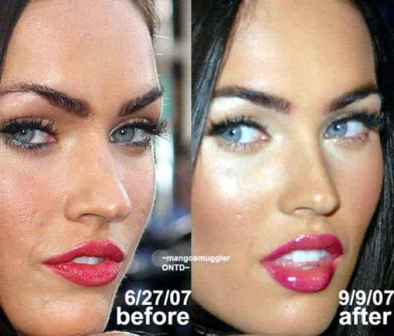 megan fox before and after nose job. Megan Fox Keira Knightley