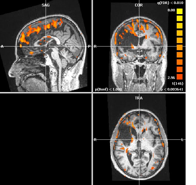 fMRI 3 years in