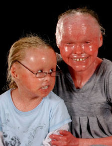 Harlequin Type Ichthyosis History | RM.