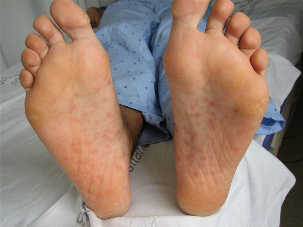 Common Childhood Skin Problems Slideshow - WebMD